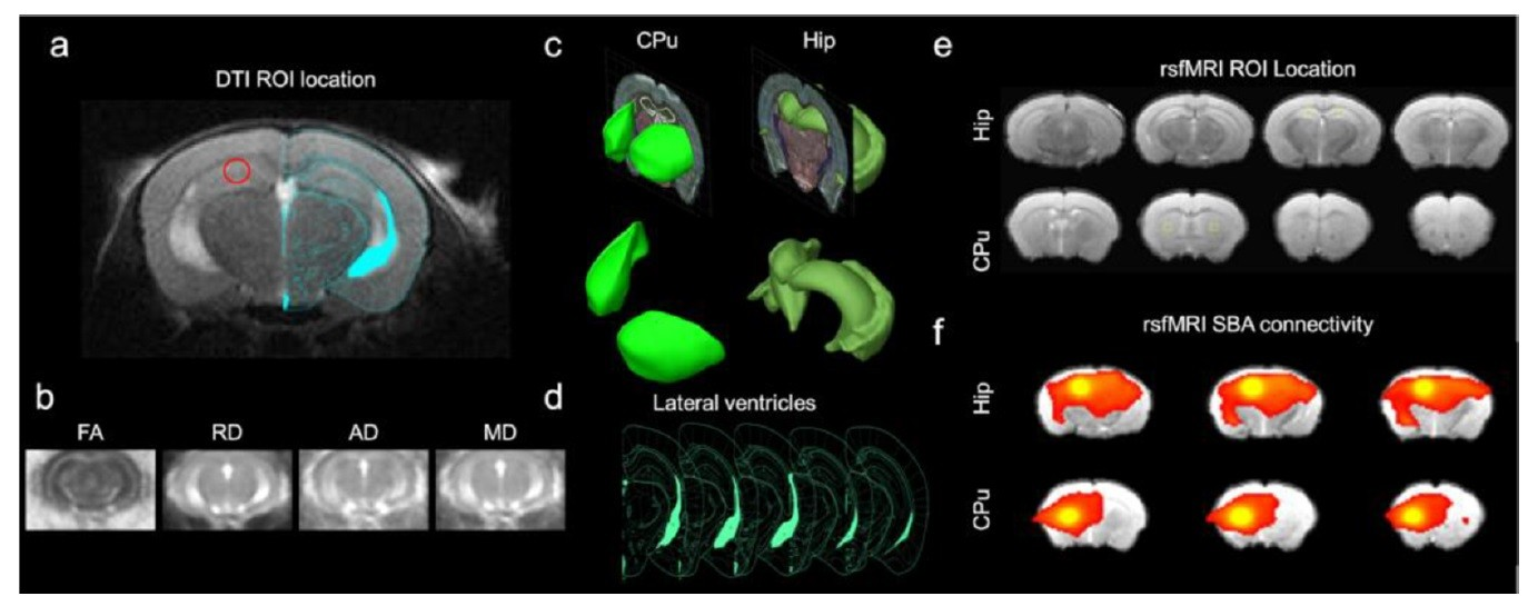 Early Stage Alterations in White Matter and Decreased Functional Interhemispheric Hippocampal Connectivity in the 3xTg Mouse Model of Alzheimer's Disease